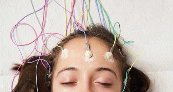 El electroencefalograma es la prueba principal para el diagnóstico y seguimiento de la epilepsia