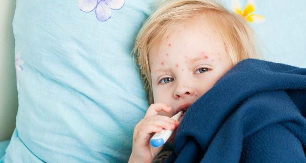 La varicela se asemeja a un resfriado, con la diferencia de las ampollas