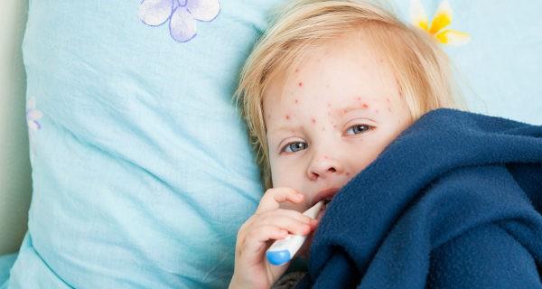 Hay detractores de la vacuna contra la varicela porque puede aumentar la prevalencia en adultos
