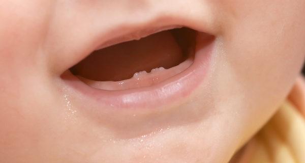 Los primeros dientes del bebé