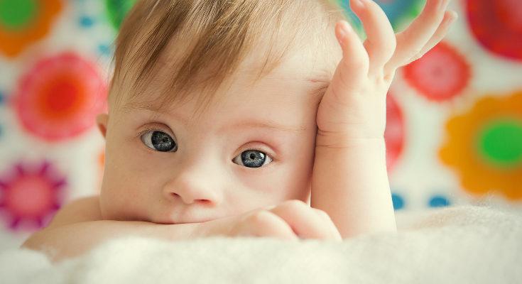 Los niños con síndrome de down tienen 3 cromosomas en el par 21, cuando deberían ser 2