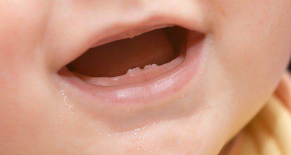 Los dientes empiezan a salir a partir de los 6 meses