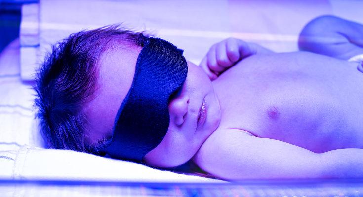 Sólo en algunos casos la ictericia necesita sesiones de fototerapia, si no, basta con exponer al bebé al sol