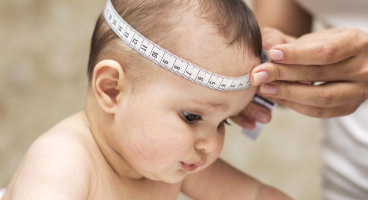El bebé tiene líquido alrededor de la cabeza