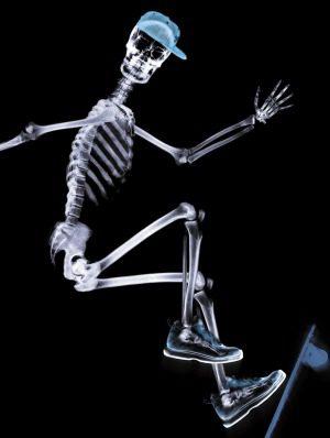 Adolescente en huesos