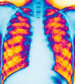 Pulmón fibrosis quística