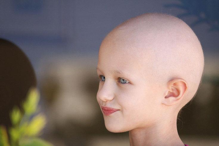 La caída del pelo depende del medicamento que le administren en la quimioterapia