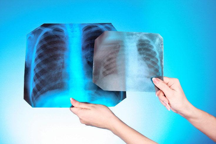 A veces se colocan placas de plomo para proteger diversas zonas del cuerpo de los rayos x