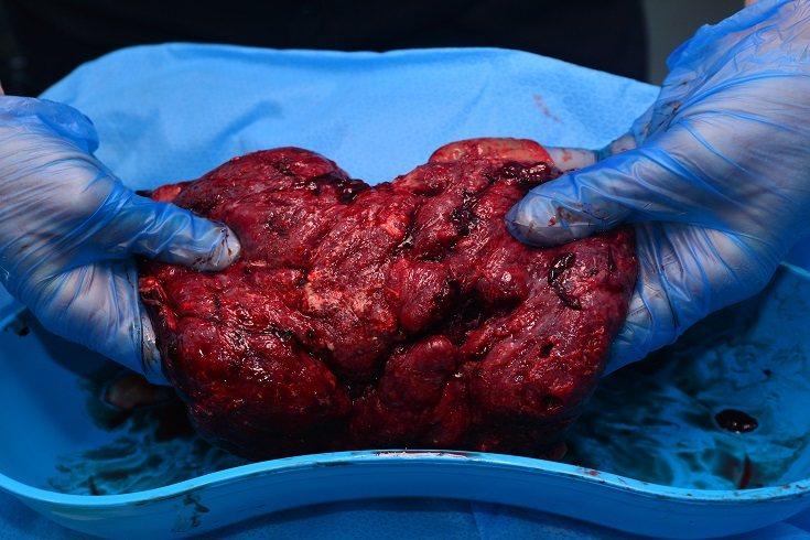 La placenta es un filtro para mantener al bebé a salvo de algunas sustancias peligrosas