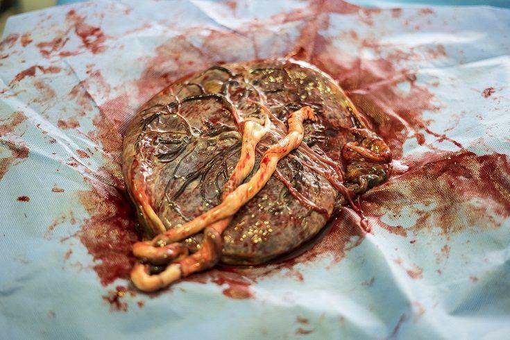 Hay quienes prefieren comer su propia placenta