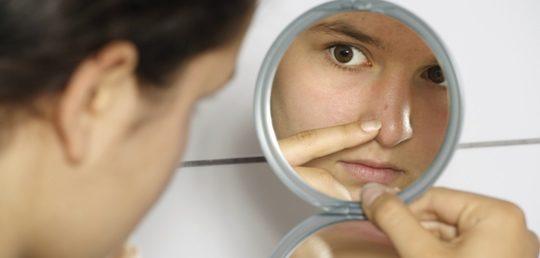 Adolescente con acné se mira al espejo