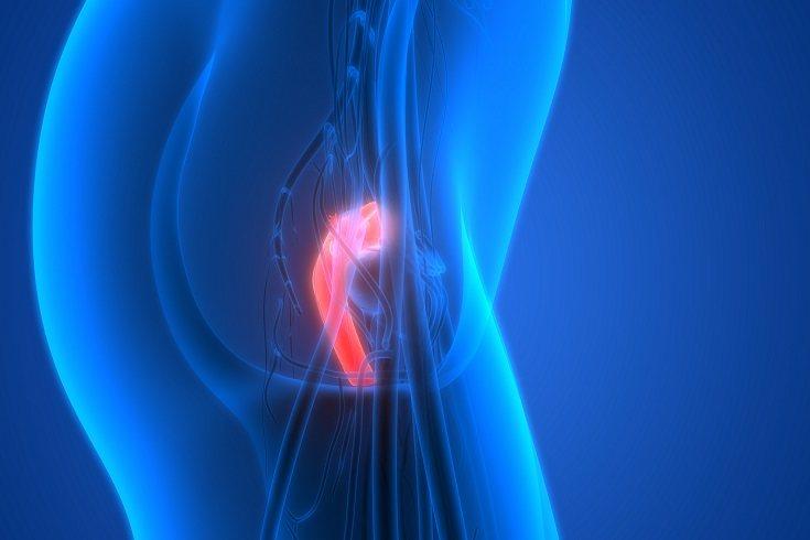 La insuficiencia cervical se produce cuando el cérvix comienza a abrirse antes de tiempo durante la gestación
