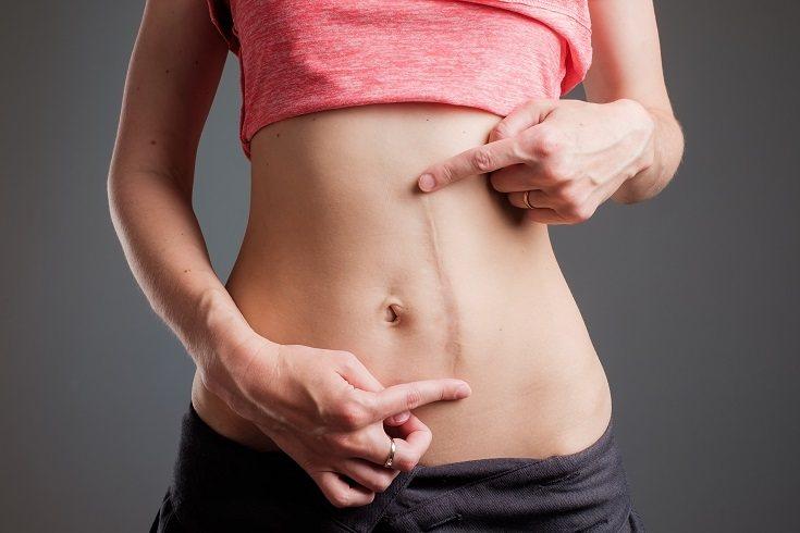 Tu capacidad para tener un estómago plano depende en parte de tu tipo de cuerpo