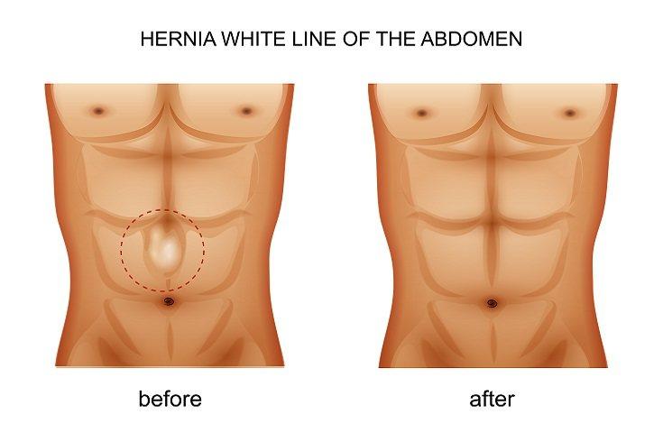 La hernia umbilical no es grave