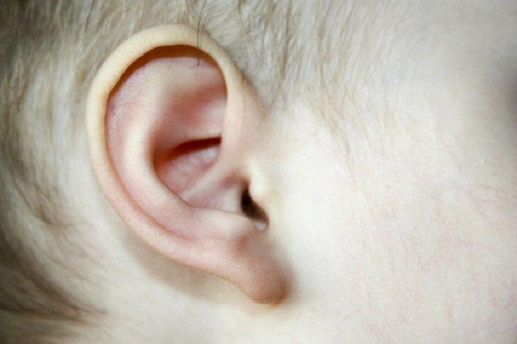 La cera de oído impactada también puede afectar a la audición