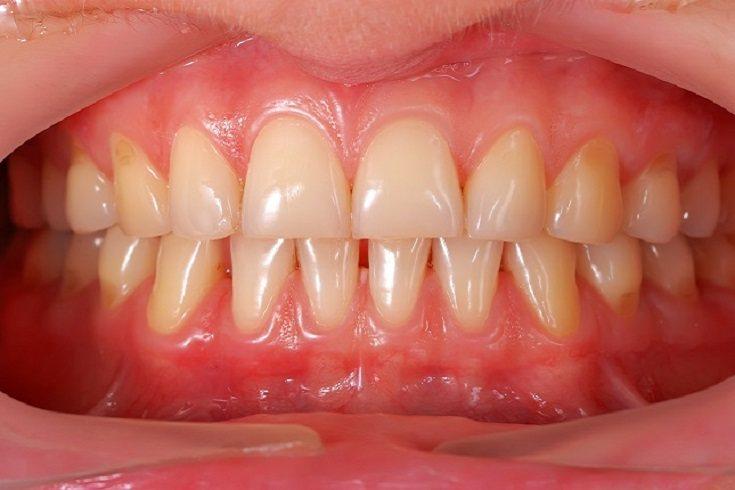 Un dolor de encías puede ser tremendamente molesto
