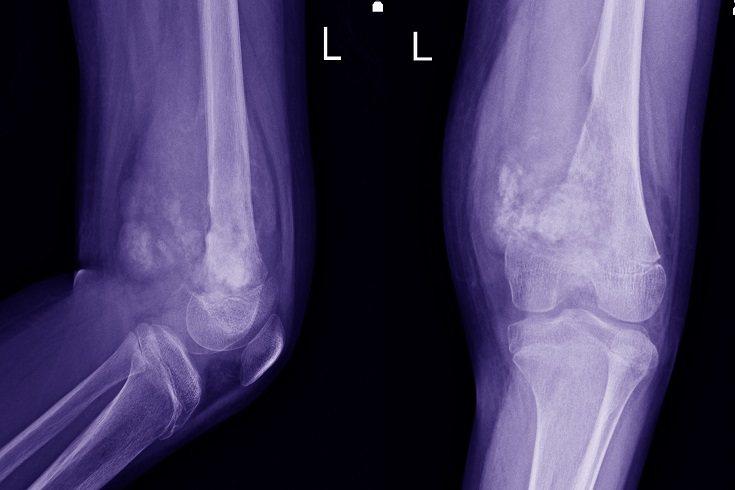 El osteosarcoma es un tipo de cáncer que afecta a los huesos del cuerpo