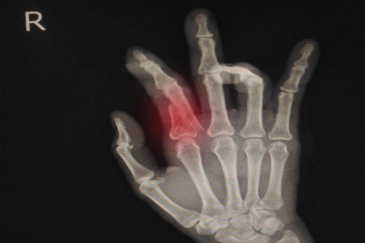 Es recomendable que se realice una resonancia magnética para comprobar el estado de los huesos