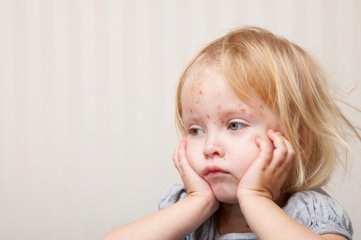La roséola es un virus tan común que casi todos los niños la contraen