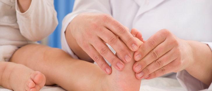 Los asteriscos vasculares sobre la persona la profiláctica