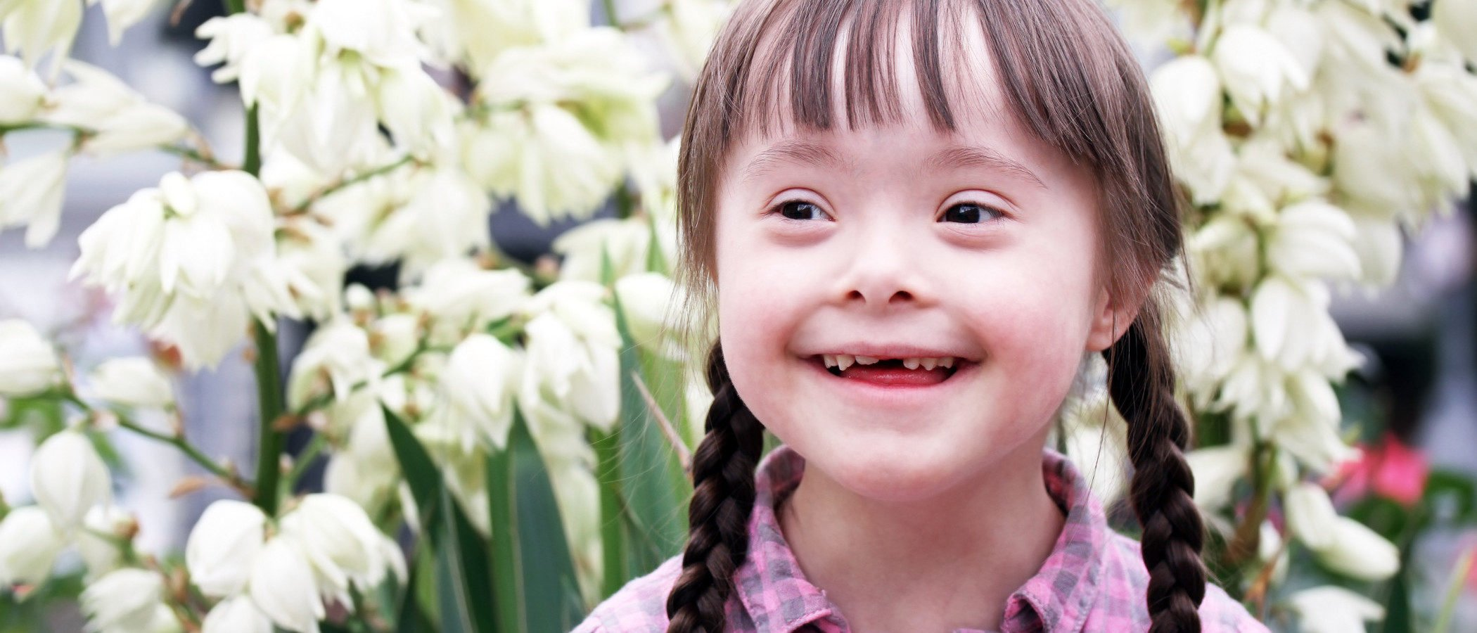 El Síndrome de Down: características y tipos