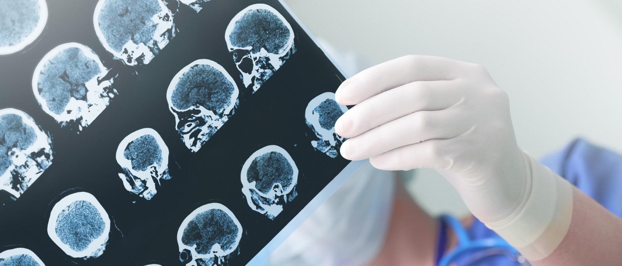 Tipos de epilepsia