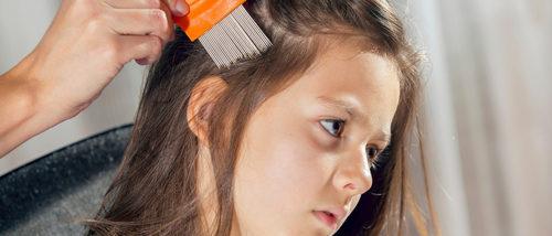 6 remedios caseros contra los piojos