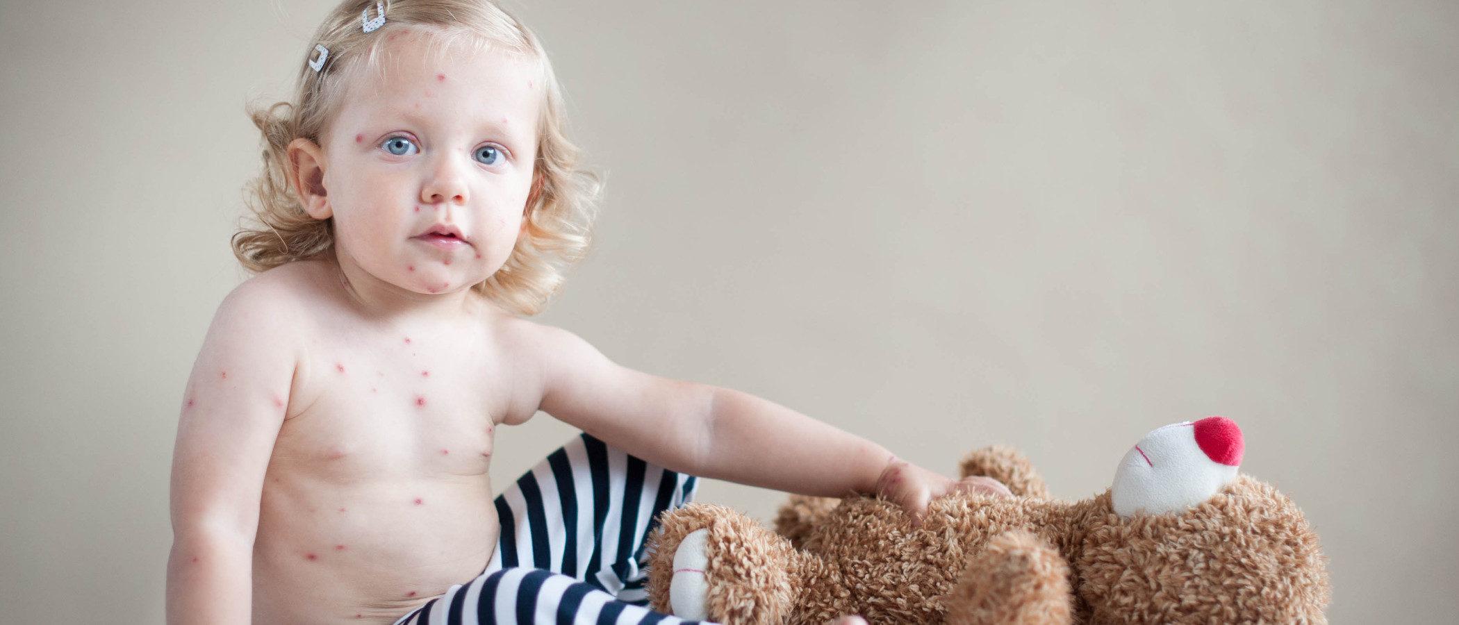 La fiesta de la varicela, conoce sus riesgos
