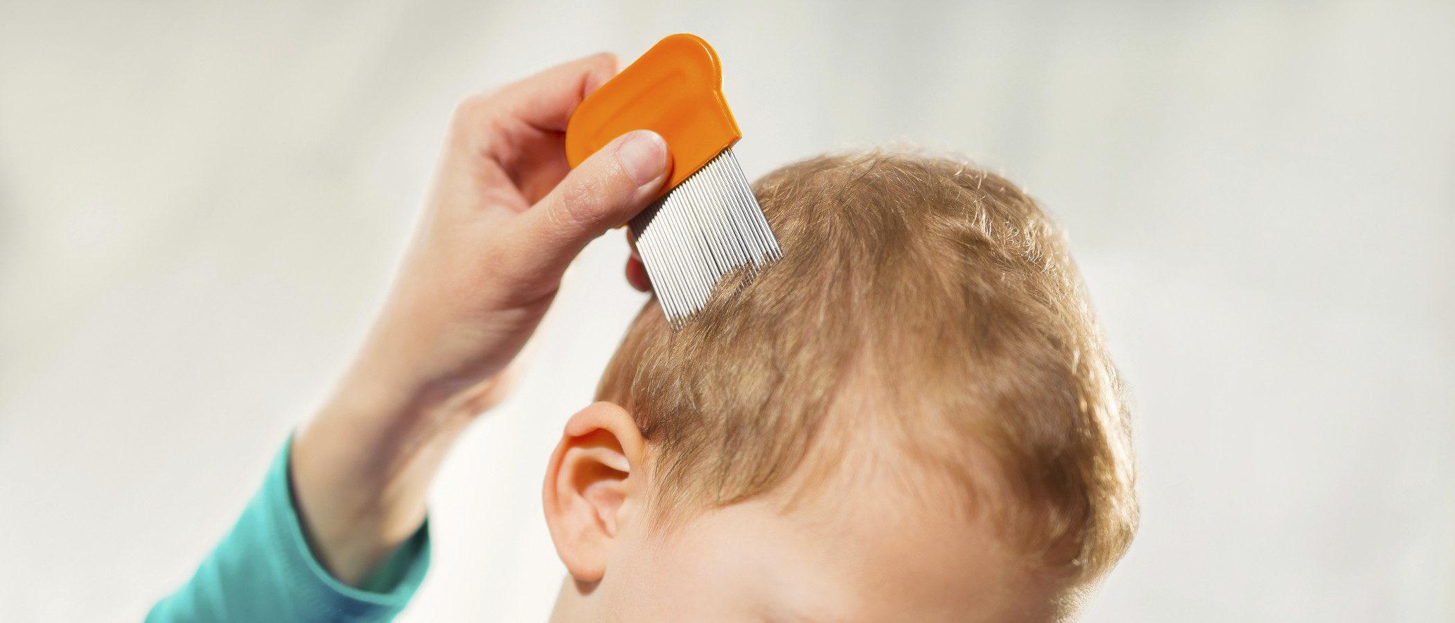 Cómo prevenir que nuestros hijos cojan liendres y piojos