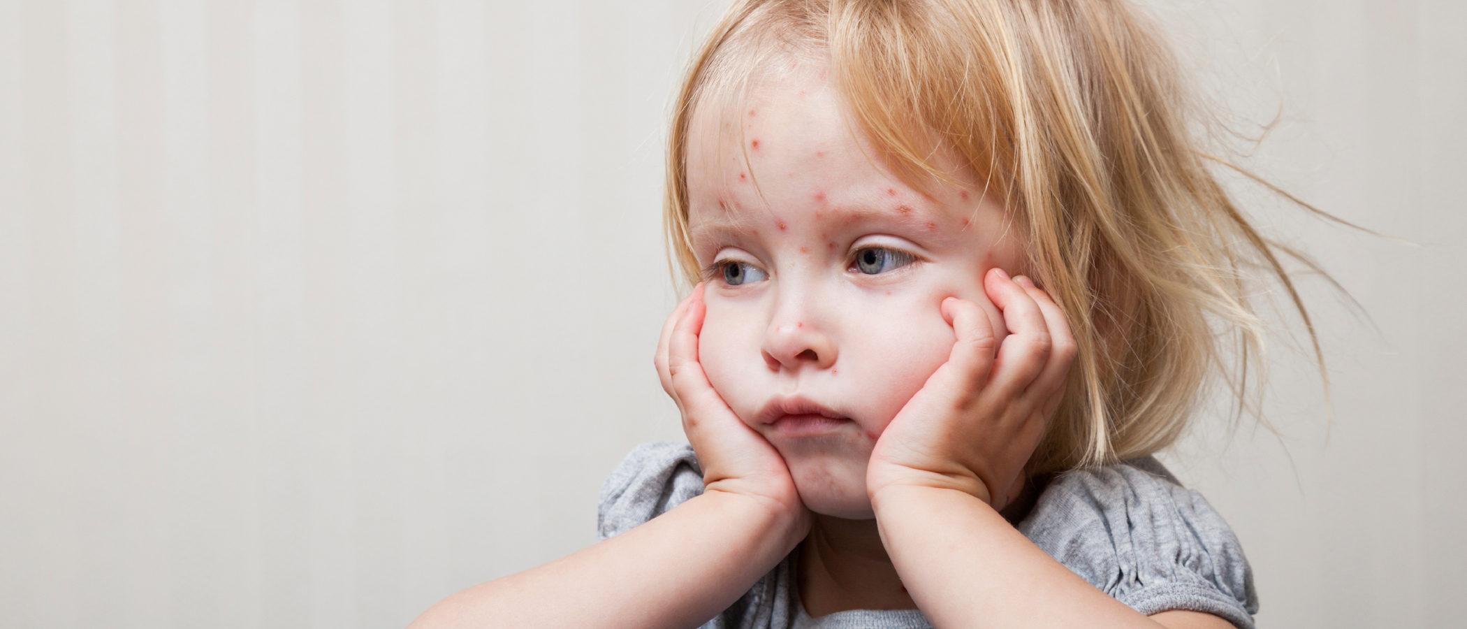 El sarampión en niños