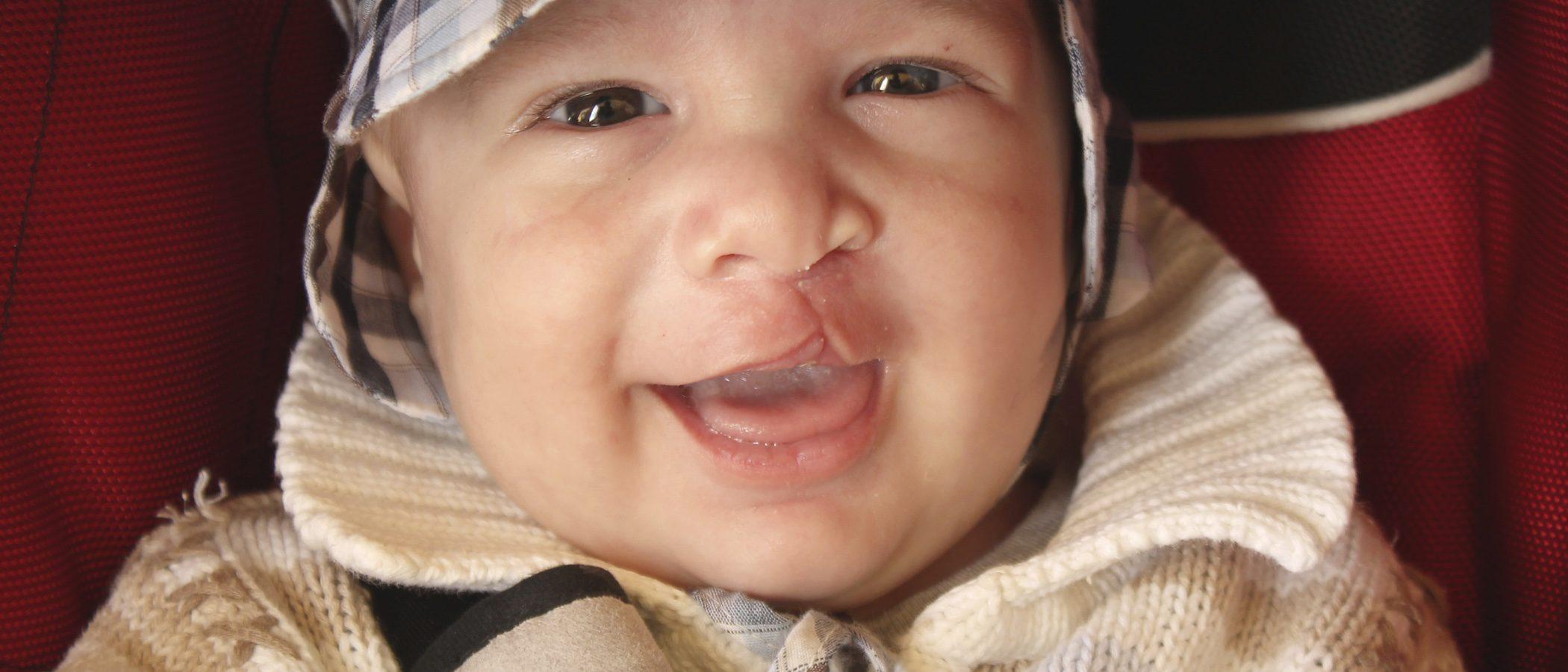 Mi hijo ha nacido con malformación del labio leporino