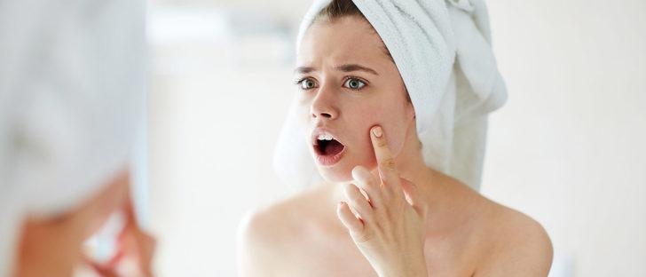 Remedios para combatir el acné en la adolescencia