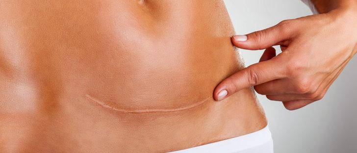 Cómo cuidar la cicatriz de la cesárea
