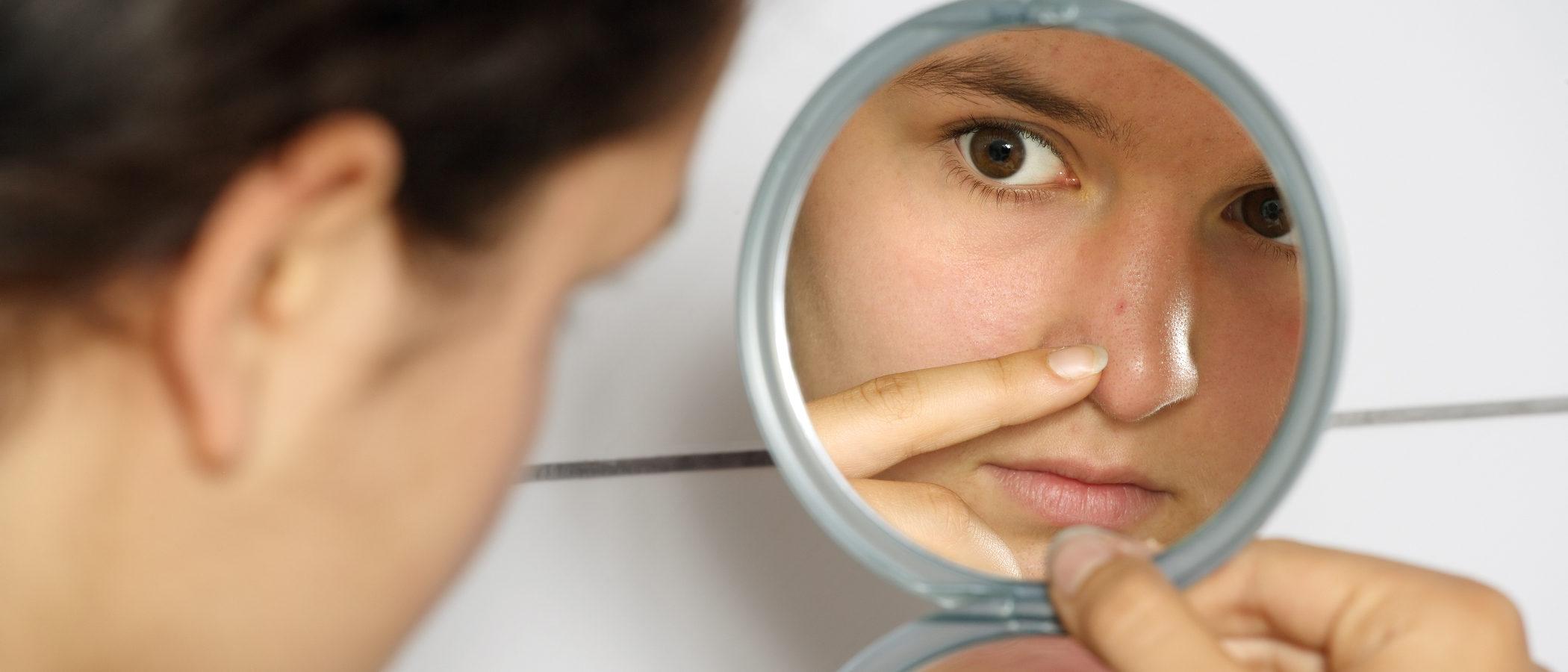¿Por qué aparece el acné en la adolescencia?