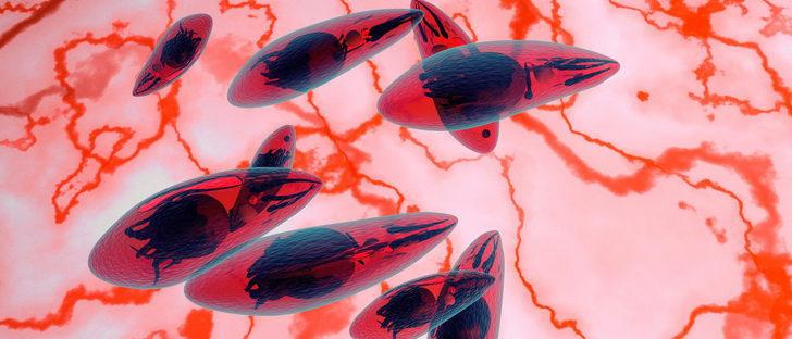 Toxoplasma gondii, el parásito que deben evitar las embarazadas