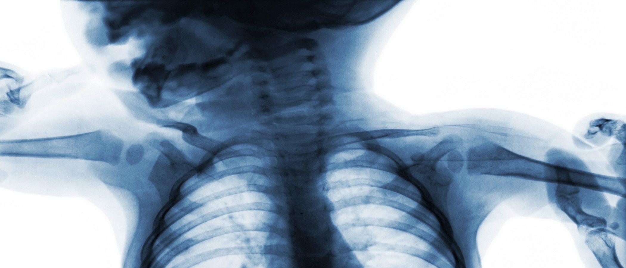 Cuándo están los pulmones del bebé totalmente desarrollados