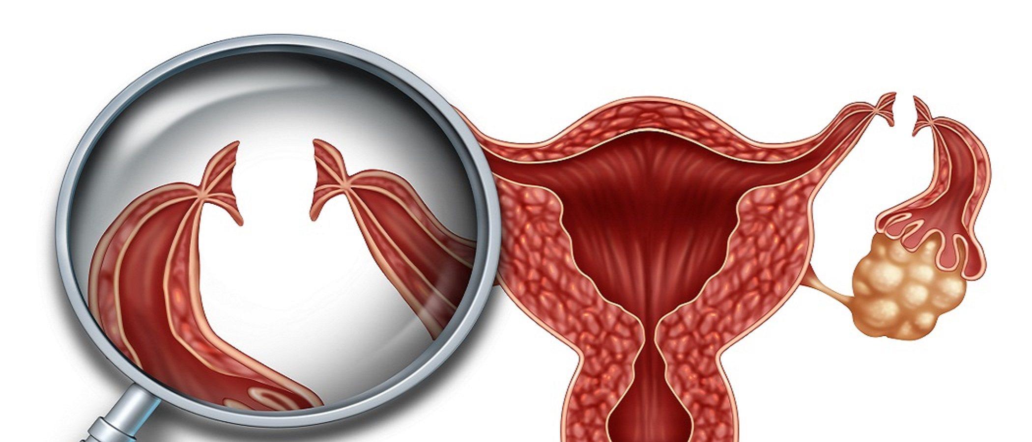 ¿Es posible quedarte embarazada si tienes una ligadura de trompas?