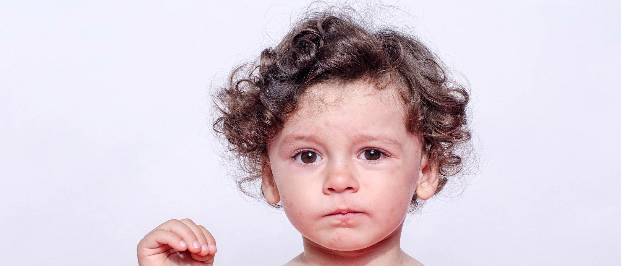 Erupción del cuero cabelludo en niños pequeños