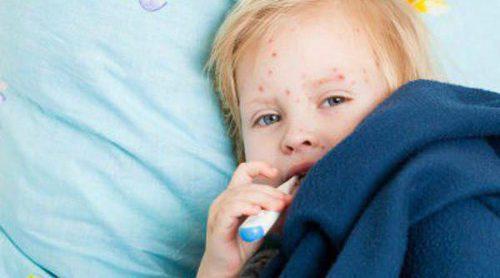 La varicela en niños, la clásica enfermedad infantil