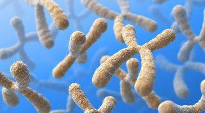Síndrome de X Frágil, diagnóstico e intervención