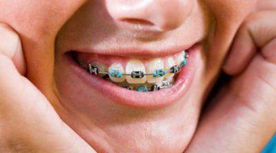 Qué tipos de ortodoncia existen para niños