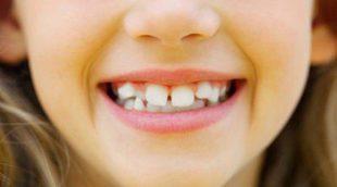 4 signos de que tu hijo o hija necesita ortodoncia o brackets