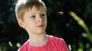 Qué hacer ante las picaduras de abeja en niños