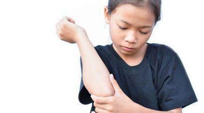 Tratamiento de la tiña en niños
