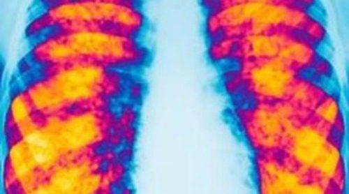 La fibrosis quística