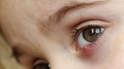 3 remedios para curar un orzuelo a tus hijos