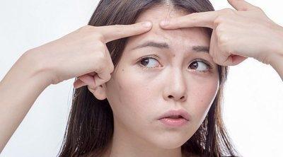 El acné en adolescentes y adultos jóvenes