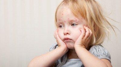 Cómo se contagia la varicela en niños