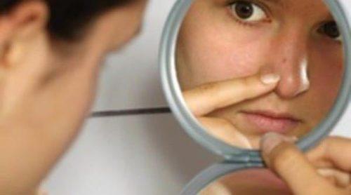 Remedios caseros para prevenir el acné en la adolescencia
