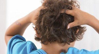 Piojos: por qué es tan difícil acabar con las liendres